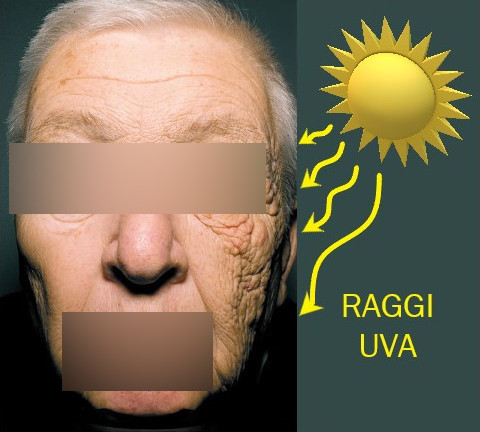 dermatoeliosi unilaterale
