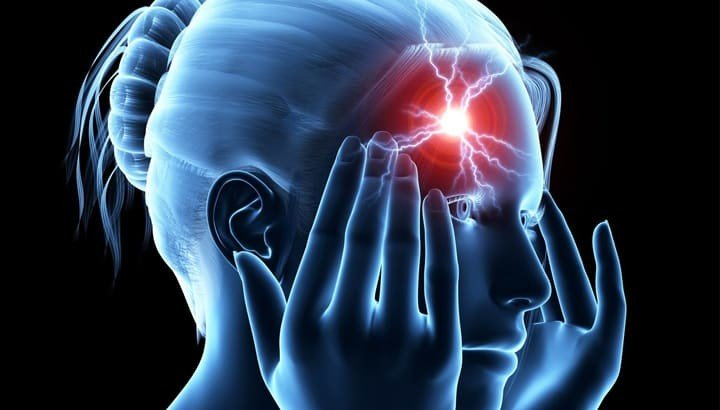 Natural Migraine Remedies: The rhizome as effective as ibuprofen